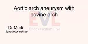 Aortic arch aneurysm with bovine arch