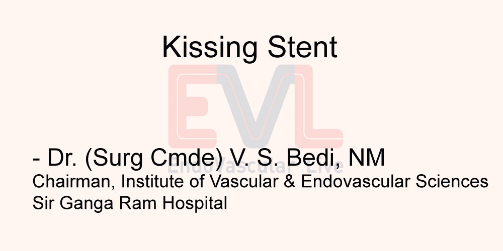 Kissing Stent