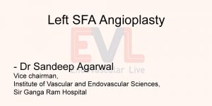 Left SFA Angioplasty