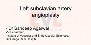 Left subclavian artery angioplasty