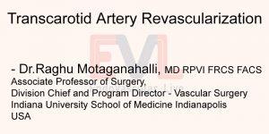 Transcarotid Artery Revascularization